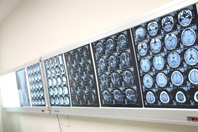 脳腫瘍術後経過